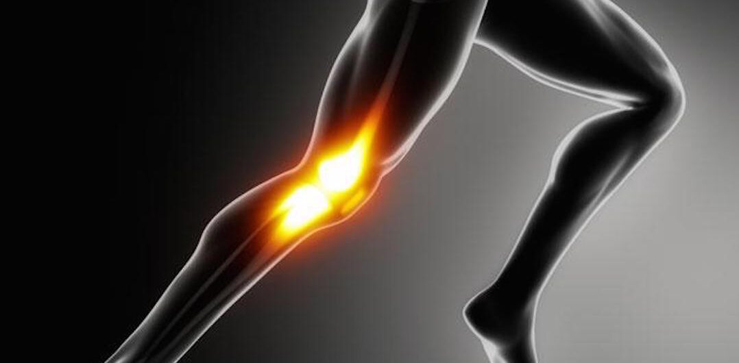 photo of a person in running position with bones and muscles of knee highlighted to show pain area