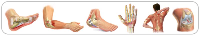 tendonitis treatments