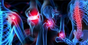 musculoskeletal injuries Ohio Healthcare Partners
