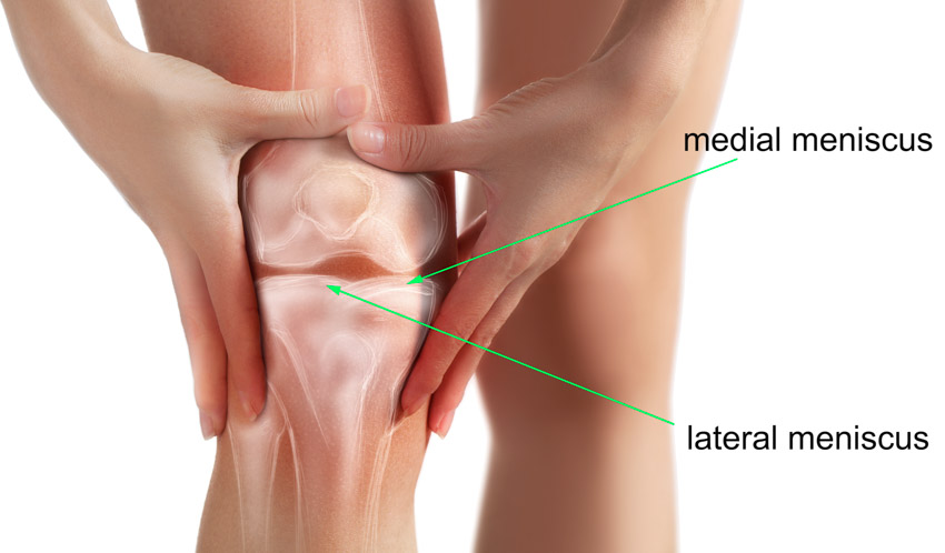 diagram of a meniscus tear